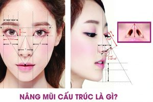 Nâng mũi cấu trúc là gì?