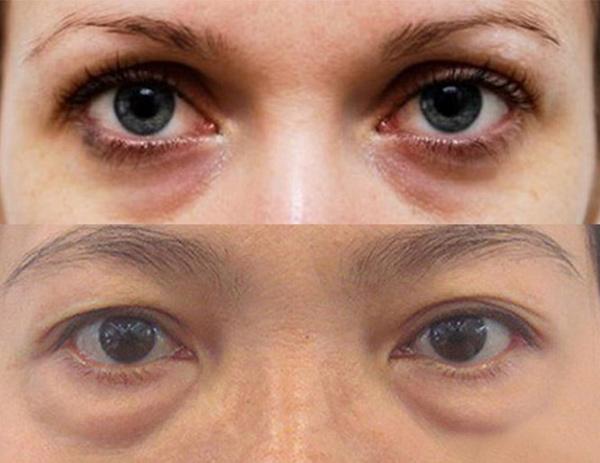 Bọng mắt là gì?