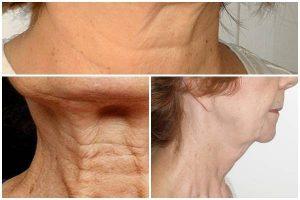 Da chảy xệ – lão hóa do thiếu hụt collagen và elastin