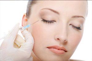 xóa nhăn vùng mắt bằng tiêm Botox