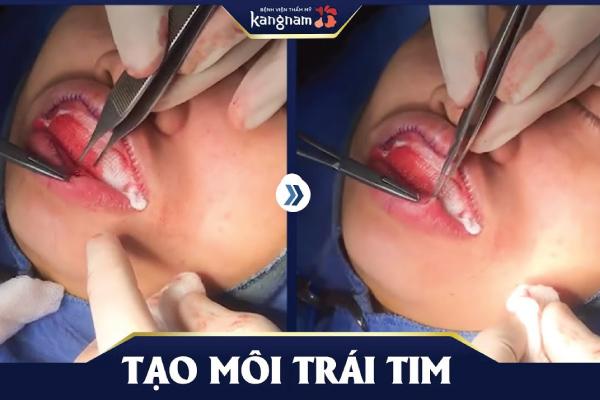 cắt môi trái tim kangnam