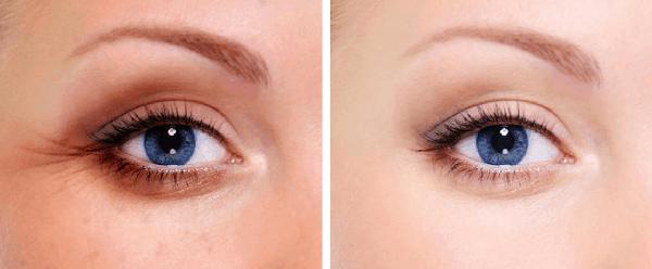 Công dụng kem trị thâm mắt