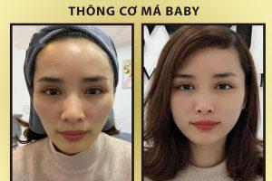 thong-co-tao-ma-baby