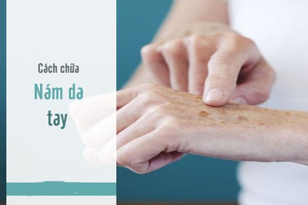 Cách chữa da tay bị nám