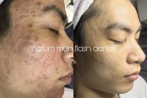 flash-acnes-co-tot-khong